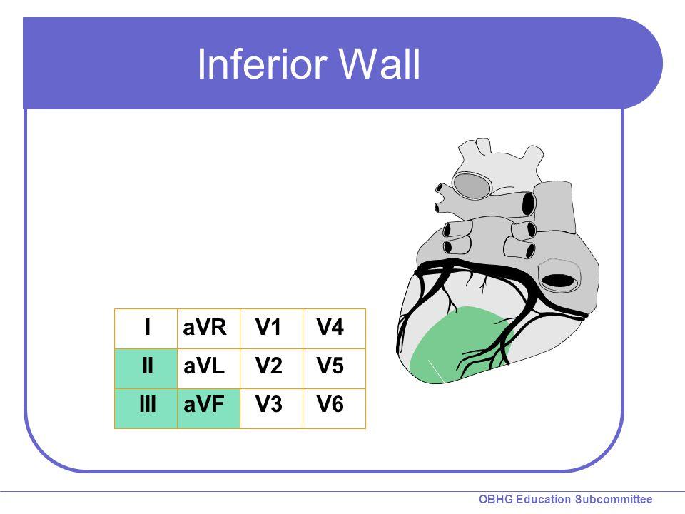 OBHG Education Subcommittee Inferior Wall I II III aVR aVL aVF V1 V2 V3 V4 V5 V6