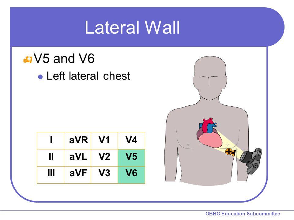 OBHG Education Subcommittee Lateral Wall  V5 and V6 Left lateral chest I II III aVR aVL aVF V1 V2 V3 V4 V5 V6