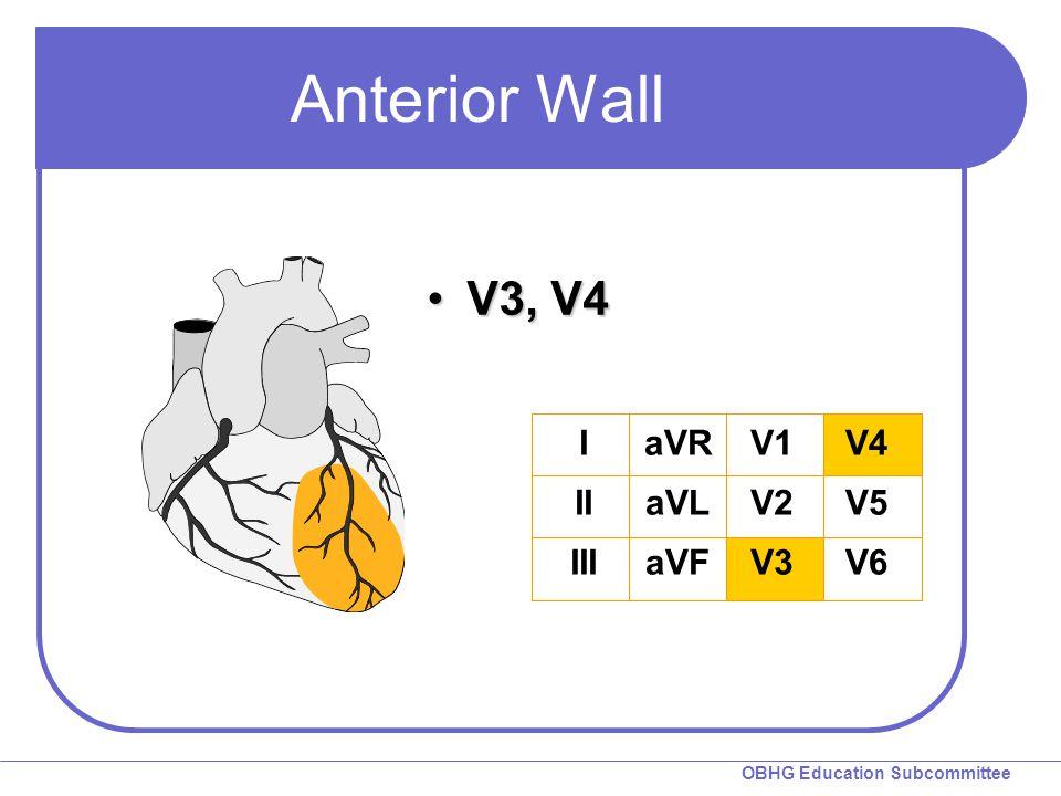 OBHG Education Subcommittee Anterior Wall V3, V4V3, V4 I II III aVR aVL aVF V1 V2 V3 V4 V5 V6