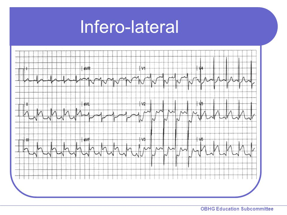 OBHG Education Subcommittee Infero-lateral
