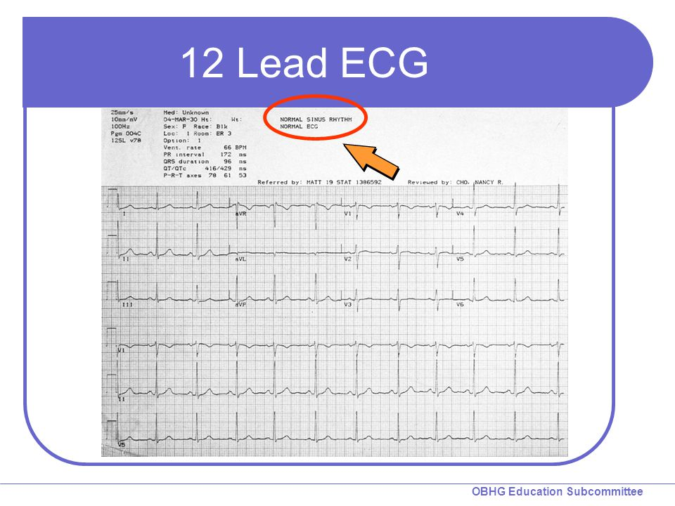 OBHG Education Subcommittee 12-Lead ECG  AMI recognition Two things to know What to look for Where to look Local medical oversight will determine the criteria used to identify a STEMI patient.