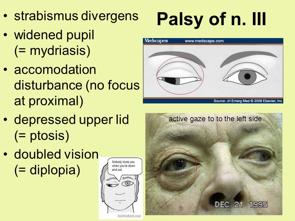 Palsy of n. III strabismus divergens widened pupil (= mydriasis) accomodation disturbance (no focus at proximal) depressed upper lid (= ptosis) double