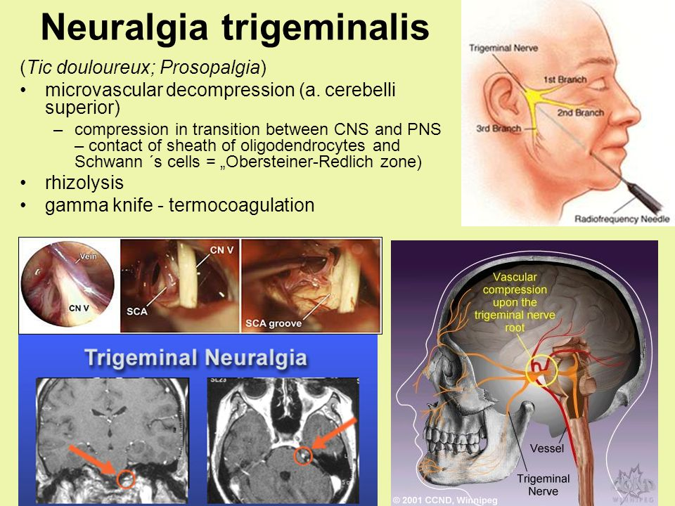 Neuralgia trigeminalis (Tic douloureux; Prosopalgia) microvascular decompression (a. cerebelli superior) –compression in transition between CNS and PN