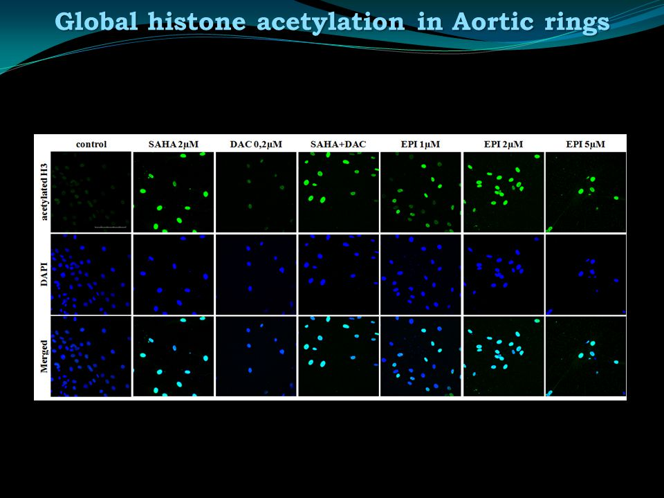 Global histone acetylation in Aortic rings