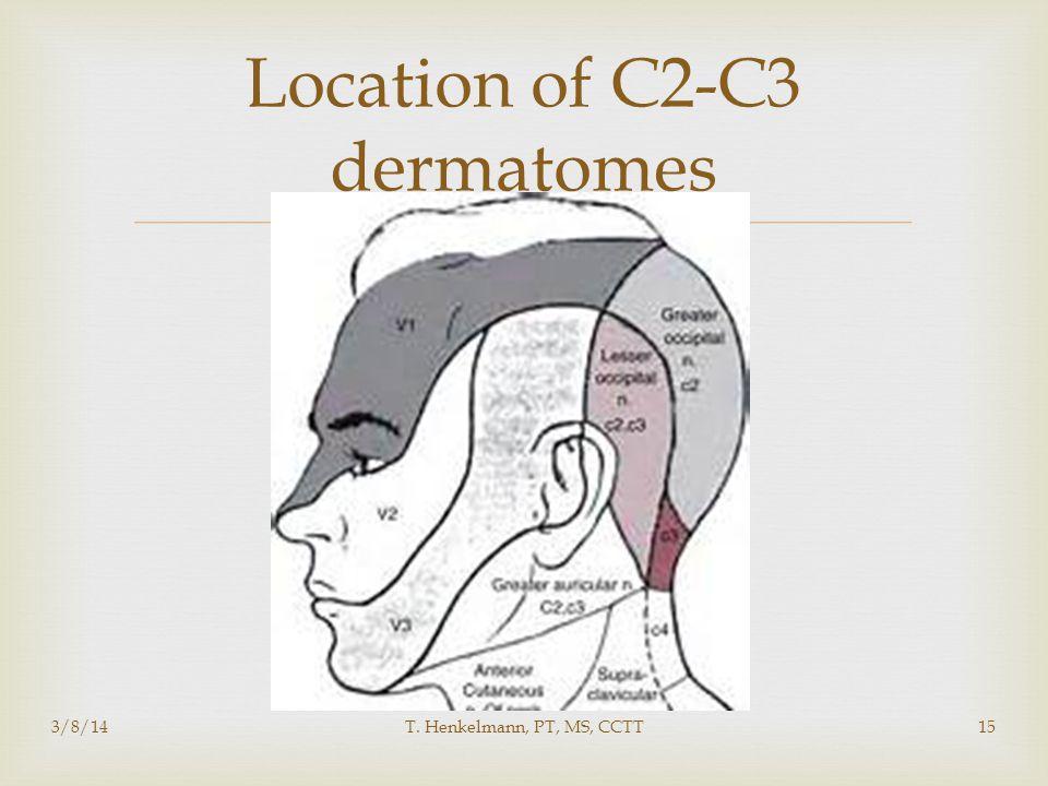  Location of C2-C3 dermatomes 3/8/14T. Henkelmann, PT, MS, CCTT15