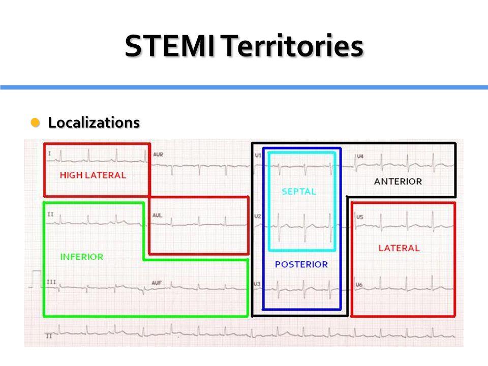 STEMI Territories Localizations Localizations