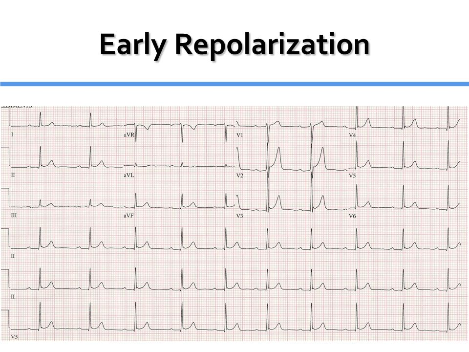 Normal variant Normal variant Males > Females Males > Females ECG Findings: ECG Findings: Diffuse, Concave up ST Elevation 2-5mm (Usually precordial) Diffuse, Concave up ST Elevation 2-5mm (Usually precordial) Notched J-Point Notched J-Point Prominent T-Waves Prominent T-Waves Temporal stability Temporal stability