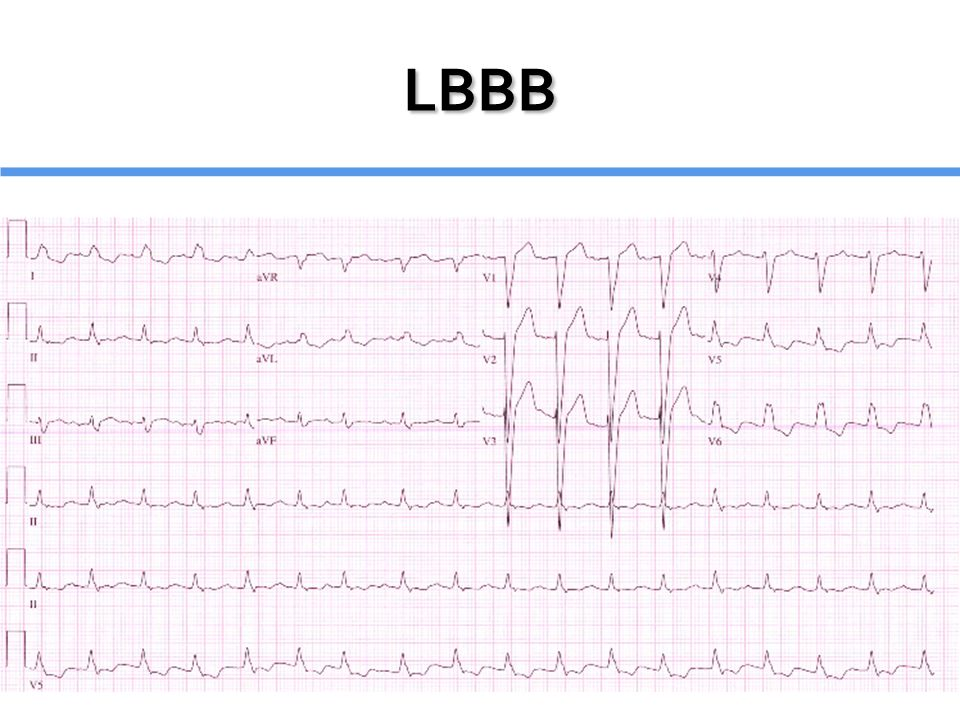 LBBB Wide QRS Wide QRS Large, positive R wave without q or s waves in I, aVL, V6 Large, positive R wave without q or s waves in I, aVL, V6 Notched 'M Shaped' R wave V5, V6 Notched 'M Shaped' R wave V5, V6 Normal or leftward axis Normal or leftward axis ST depression and T wave inversion in leftward leads ST depression and T wave inversion in leftward leads ST elevation and upright T waves in right precordial leads ST elevation and upright T waves in right precordial leads