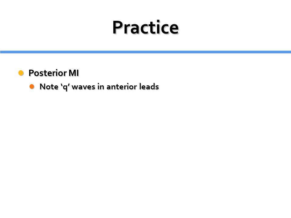 Practice Posterior MI Posterior MI Note 'q' waves in anterior leads Note 'q' waves in anterior leads