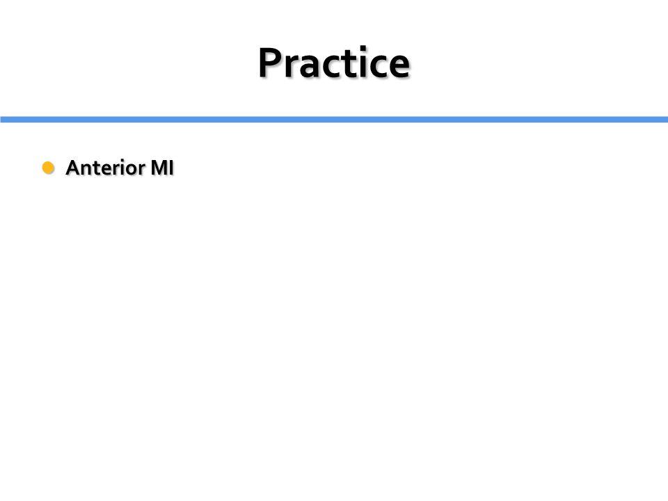 Practice Anterior MI Anterior MI