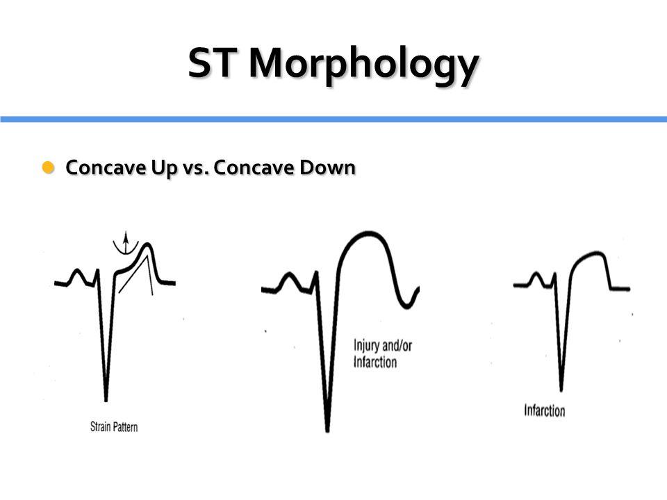 ST Morphology Concave Up vs. Concave Down Concave Up vs. Concave Down