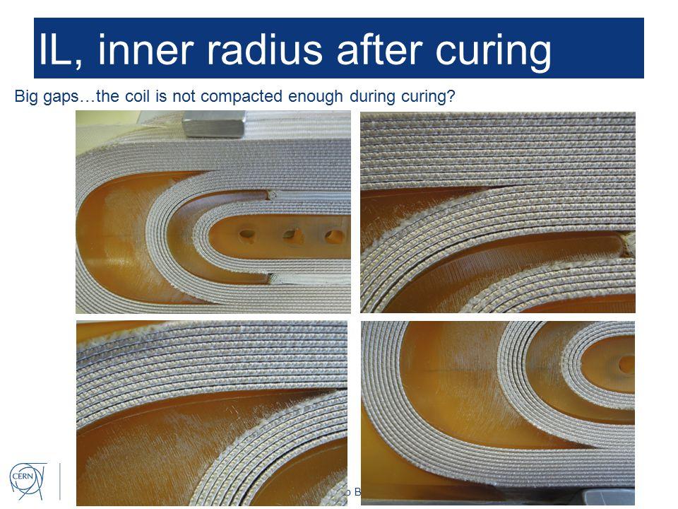 Susana Izquierdo Bermudez 9 IL, inner radius after curing