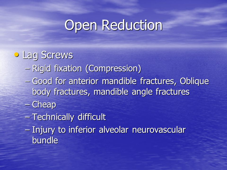 Open Reduction Lag Screws Lag Screws –Rigid fixation (Compression) –Good for anterior mandible fractures, Oblique body fractures, mandible angle fract
