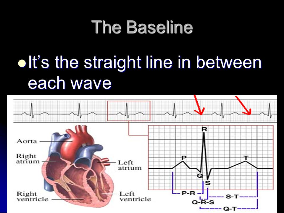 Baseline It is important to have a clear steady baseline for interpretation of the ECG.