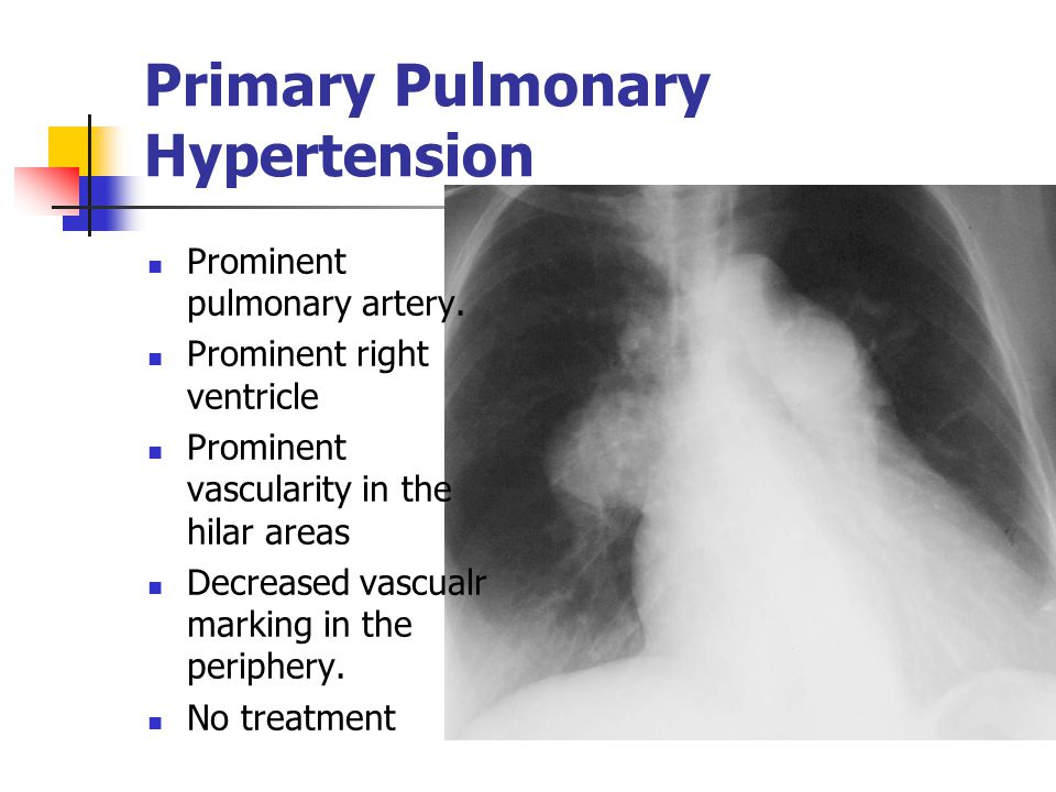Primary Pulmonary Hypertension Prominent pulmonary artery.