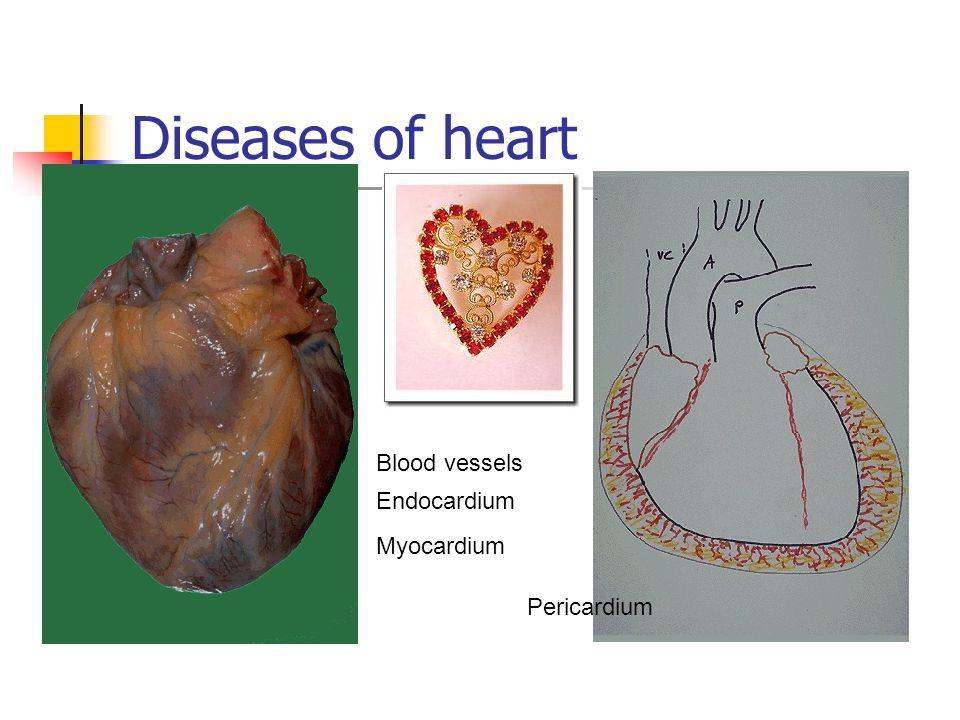 Diseases of heart Pericardium Myocardium Endocardium Blood vessels