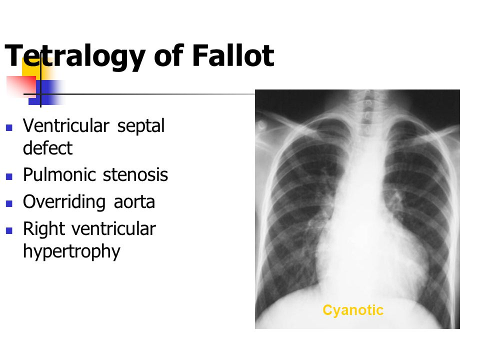 Cyanotic Tetralogy of Fallot Ventricular septal defect Pulmonic stenosis Overriding aorta Right ventricular hypertrophy