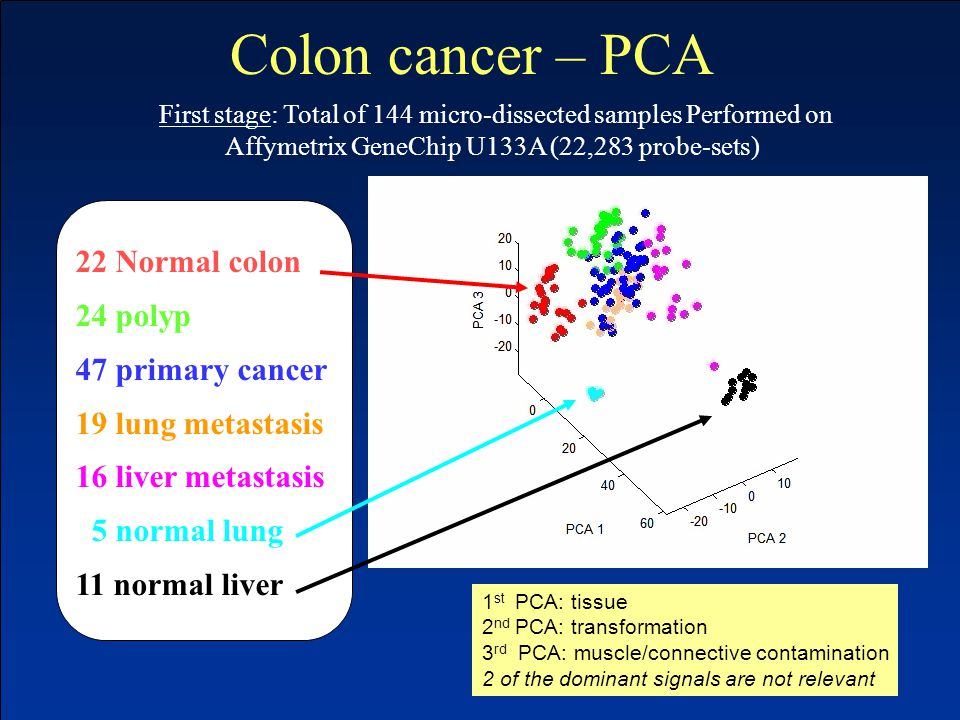 22 Normal colon 24 polyp 47 primary cancer 19 lung metastasis 16 liver metastasis 5 normal lung 11 normal liver First stage: Total of 144 micro-dissected samples Performed on Affymetrix GeneChip U133A (22,283 probe-sets) 1 st PCA: tissue 2 nd PCA: transformation 3 rd PCA: muscle/connective contamination 2 of the dominant signals are not relevant Colon cancer – PCA
