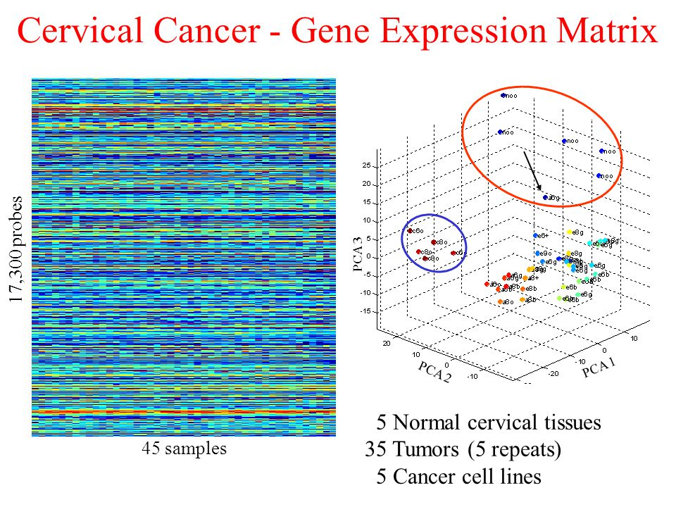 45 samples 17,300 probes PCA 1 PCA 2 PCA 3 Cervical Cancer - Gene Expression Matrix 5 Normal cervical tissues 35 Tumors (5 repeats) 5 Cancer cell lines