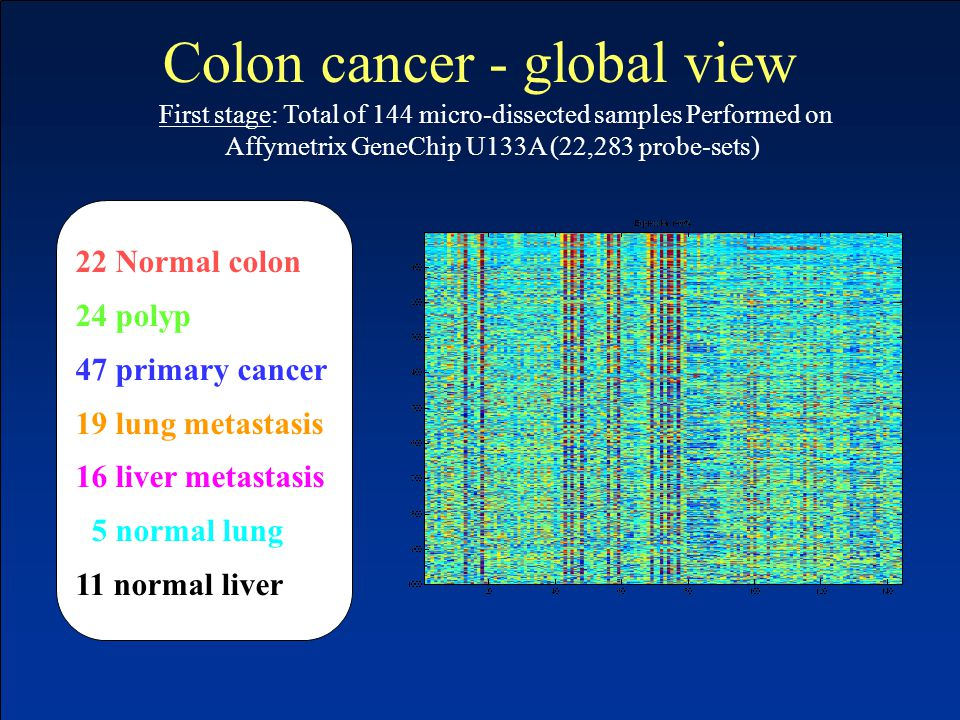 22 Normal colon 24 polyp 47 primary cancer 19 lung metastasis 16 liver metastasis 5 normal lung 11 normal liver First stage: Total of 144 micro-dissected samples Performed on Affymetrix GeneChip U133A (22,283 probe-sets) Colon cancer - global view