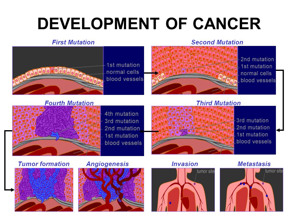 DEVELOPMENT OF CANCER First MutationSecond Mutation Third MutationFourth Mutation Tumor formationAngiogenesisInvasionMetastasis