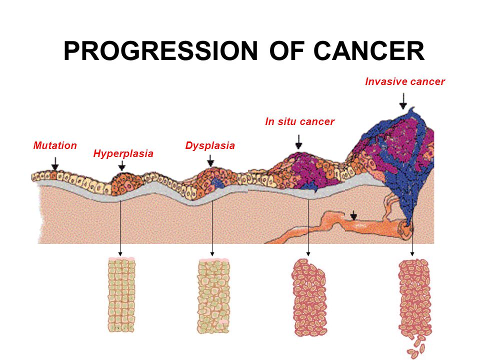PROGRESSION OF CANCER Hyperplasia Dysplasia In situ cancer Invasive cancer Mutation