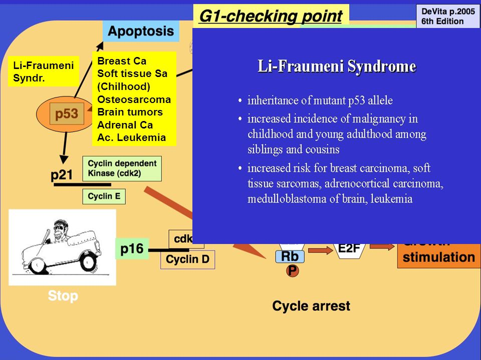 Li-Fraumeni Syndr. Breast Ca Soft tissue Sa (Chilhood) Osteosarcoma Brain tumors Adrenal Ca Ac.