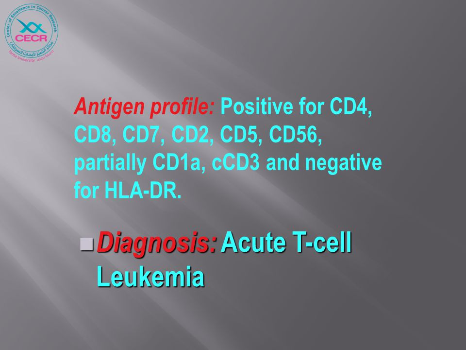 Antigen profile: Positive for CD4, CD8, CD7, CD2, CD5, CD56, partially CD1a, cCD3 and negative for HLA-DR.
