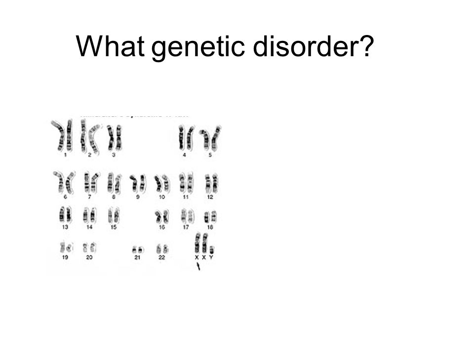 What genetic disorder?