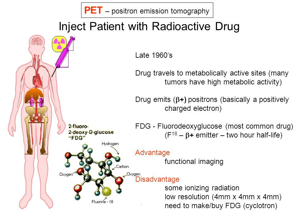 Inject Patient with Radioactive Drug Late 1960's Drug travels to metabolically active sites (many tumors have high metabolic activity) Drug emits ( 