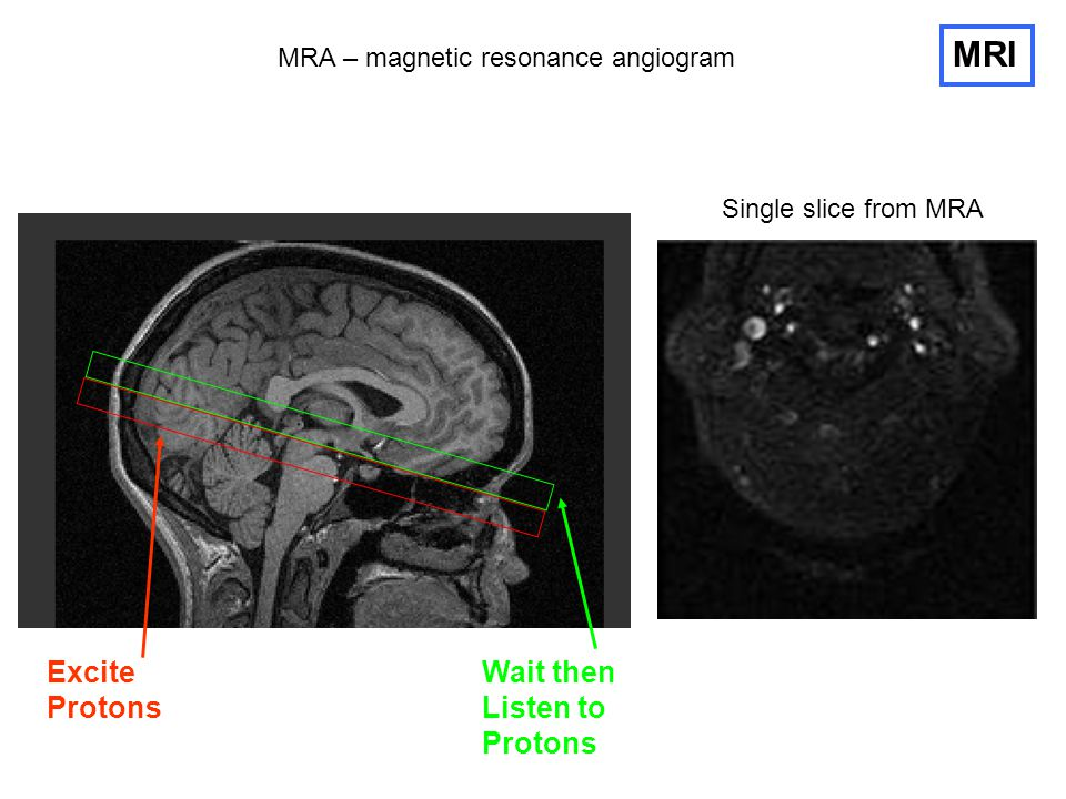 MRA – magnetic resonance angiogram MRI Excite Protons Wait then Listen to Protons Single slice from MRA