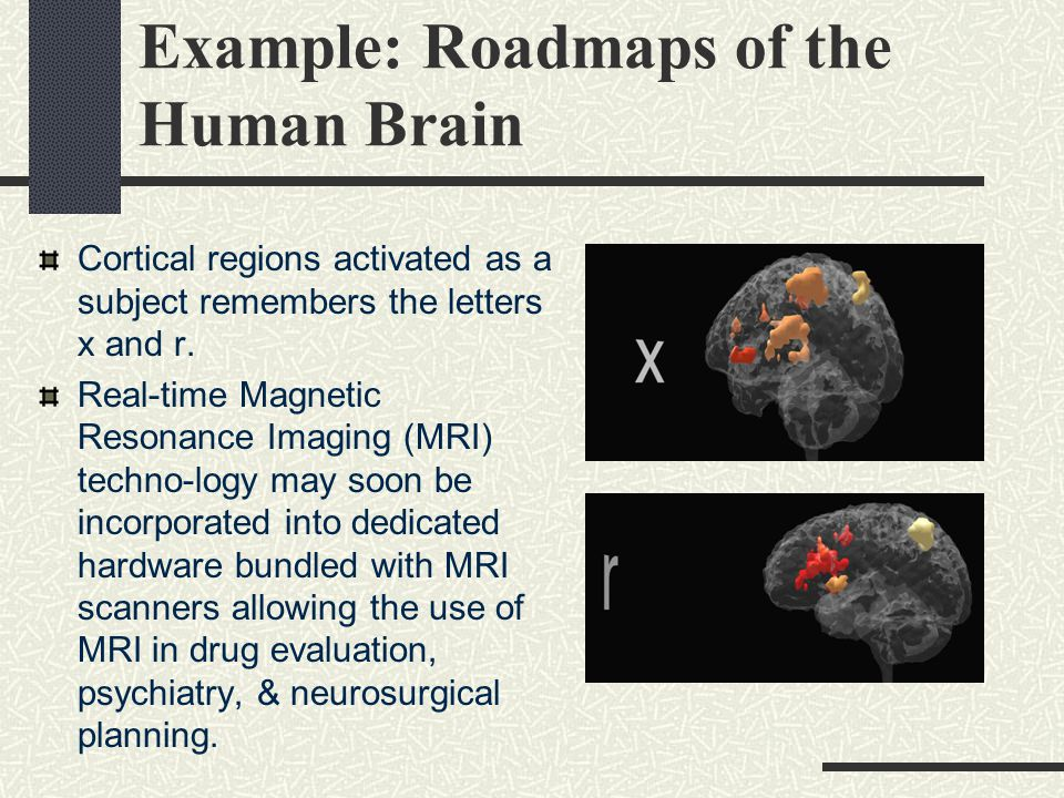 Example: Roadmaps of the Human Brain Cortical regions activated as a subject remembers the letters x and r.