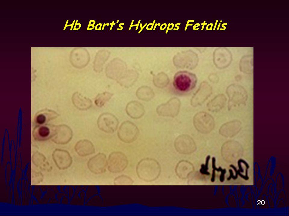 20 Hb Bart's Hydrops Fetalis
