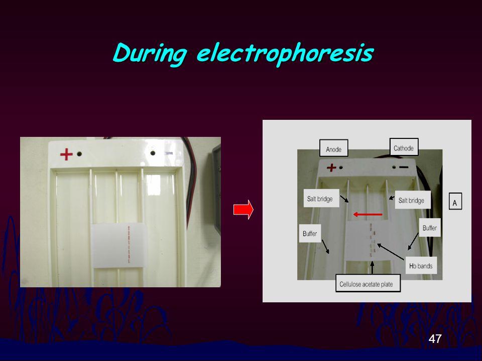 47 During electrophoresis