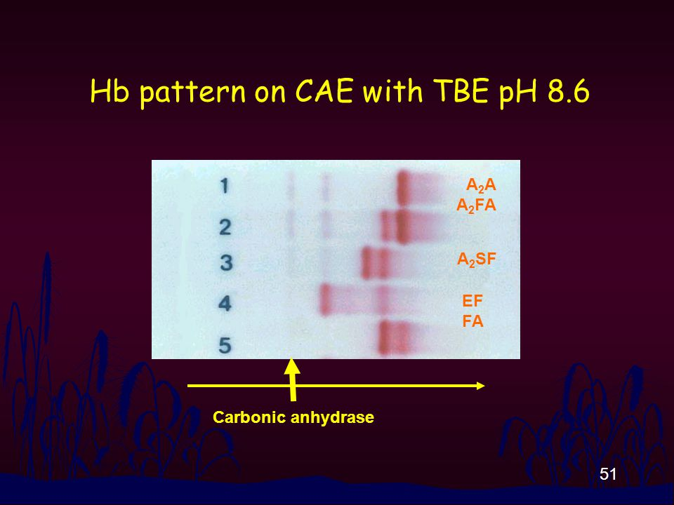 51 Hb pattern on CAE with TBE pH 8.6 A 2 A A 2 FA A 2 SF EF FA Carbonic anhydrase