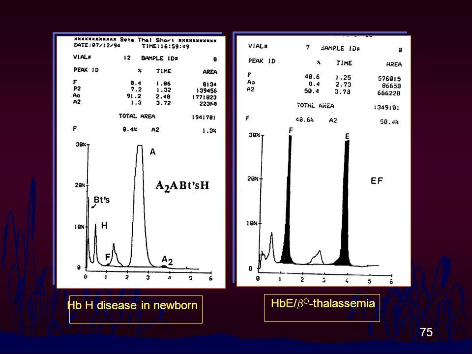 75 Hb H disease in newborn HbE/   -thalassemia