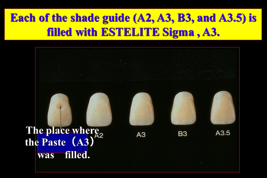 Each of the shade guide (A2, A3, B3, and A3.5) is filled with ESTELITE Sigma, A3. The place where the Paste ( A3 ) was filled. was filled.
