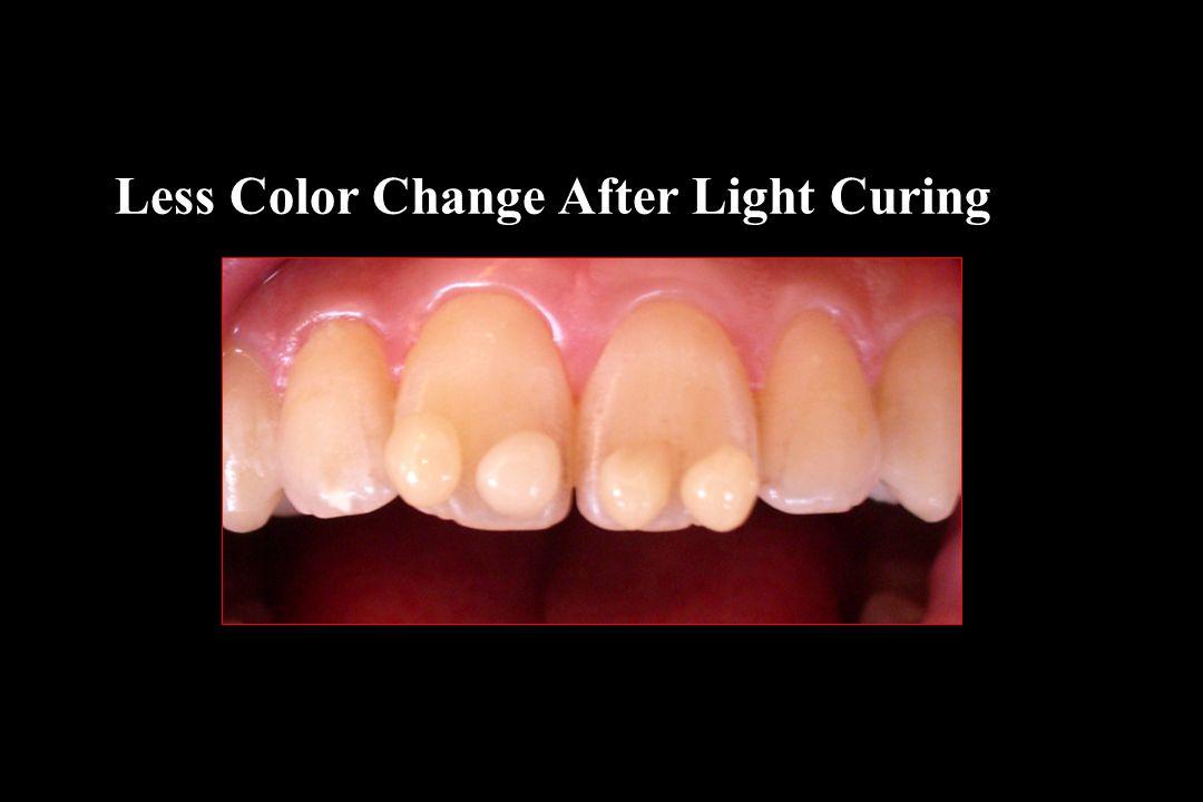 Less Color Change After Light Curing