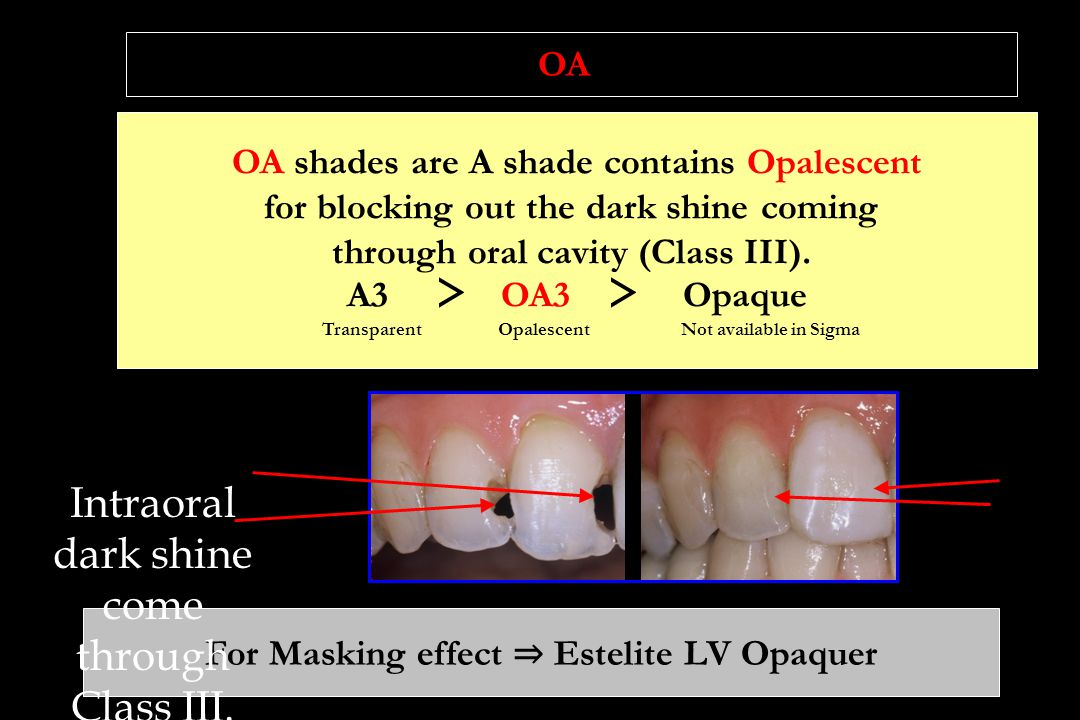 OA shades are A shade contains Opalescent for blocking out the dark shine coming through oral cavity (Class III).