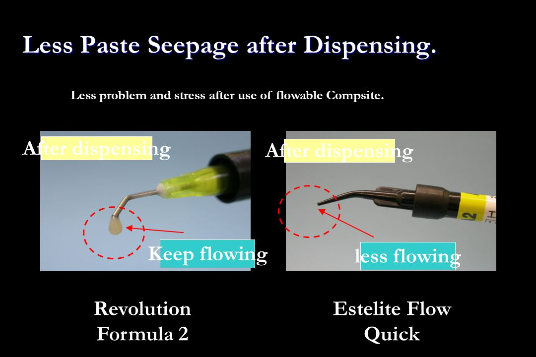 Less Paste Seepage after Dispensing. Revolution Formula 2 Estelite Flow Quick Less problem and stress after use of flowable Compsite. After dispensing