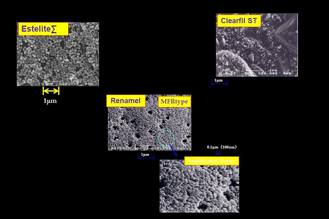 Renamel Clearfil ST 1μm 0.1μm ( 100nm ) MFRtype Amplification Picture Estelite∑ 1μm