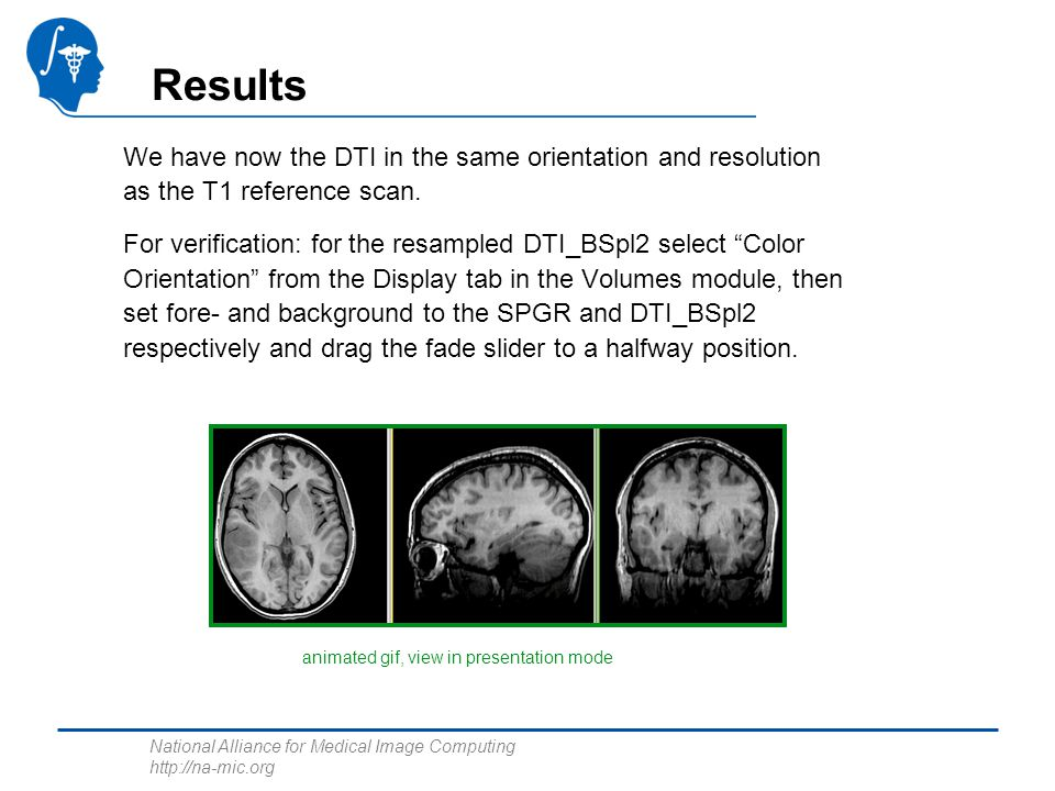 National Alliance for Medical Image Computing http://na-mic.org Results We have now the DTI in the same orientation and resolution as the T1 reference scan.