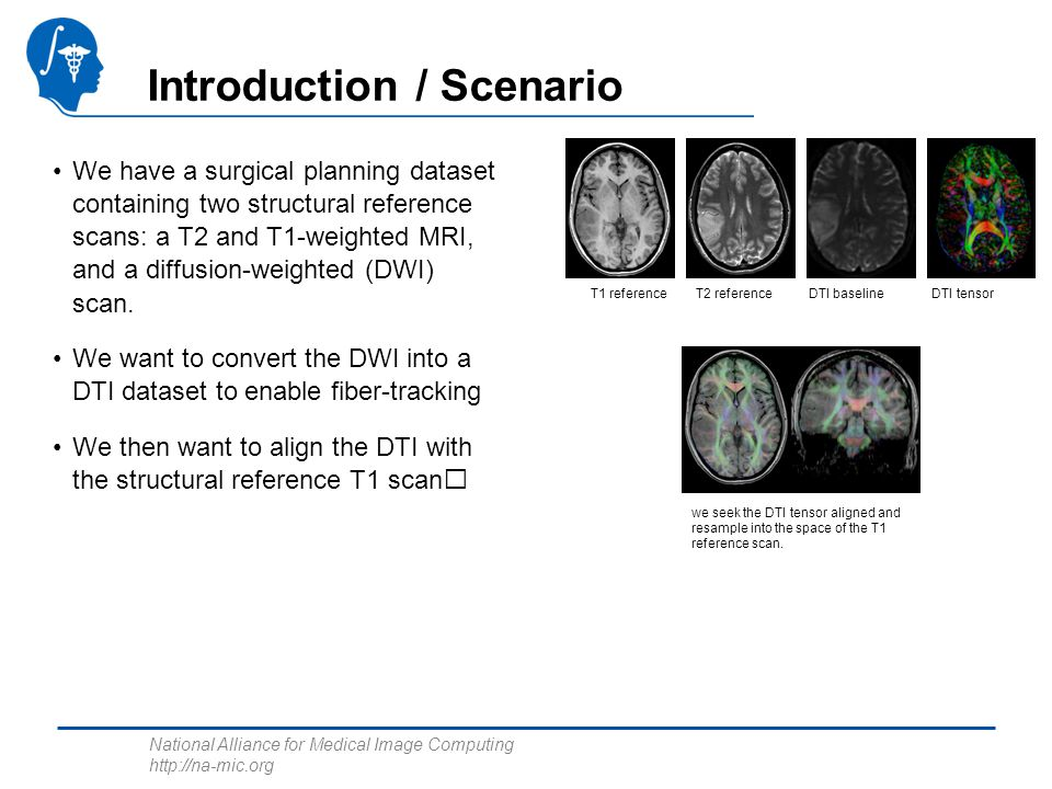 National Alliance for Medical Image Computing http://na-mic.org Introduction / Scenario We have a surgical planning dataset containing two structural reference scans: a T2 and T1-weighted MRI, and a diffusion-weighted (DWI) scan.