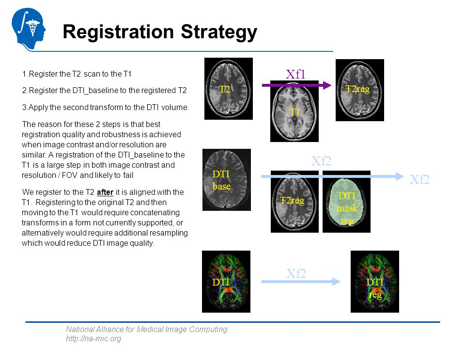 National Alliance for Medical Image Computing http://na-mic.org Registration Strategy 1.Register the T2 scan to the T1 2.Register the DTI_baseline to
