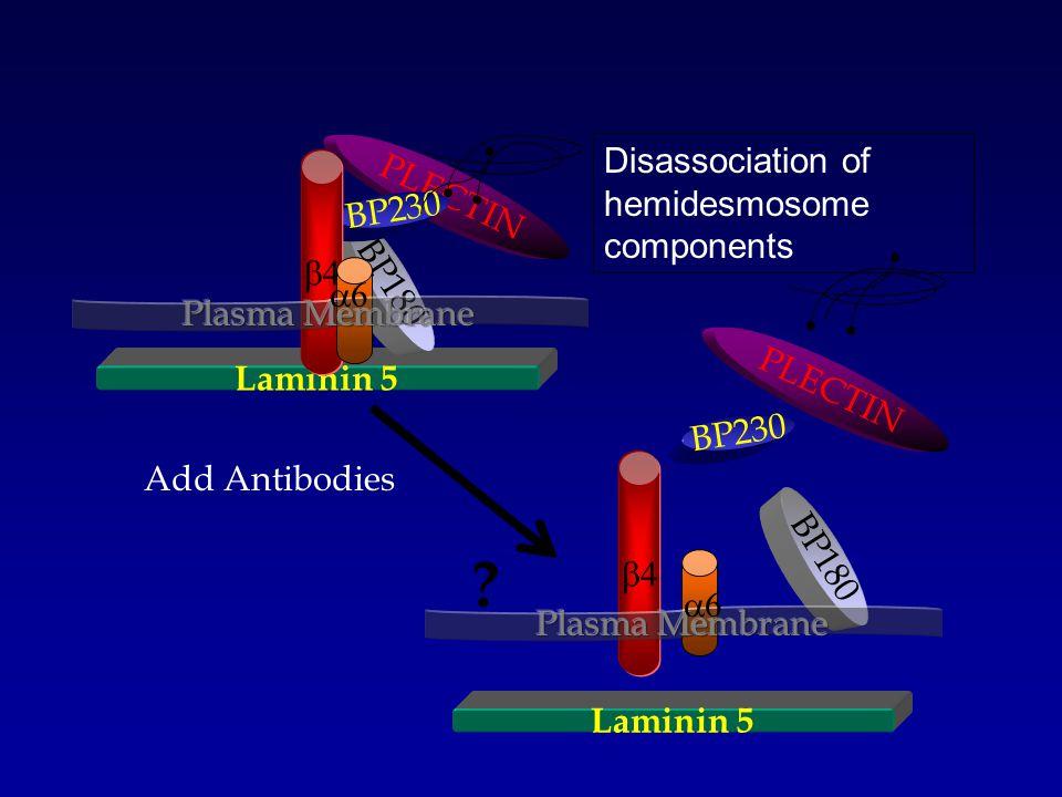 Laminin 5 BP180 PLECTIN BP230   Laminin 5 BP180 PLECTIN BP230   Add Antibodies .