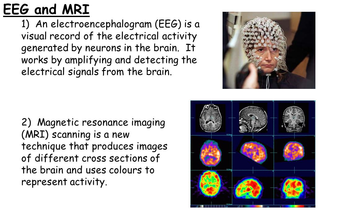 EEG and MRI 1) An electroencephalogram (EEG) is a visual record of the electrical activity generated by neurons in the brain. It works by amplifying a