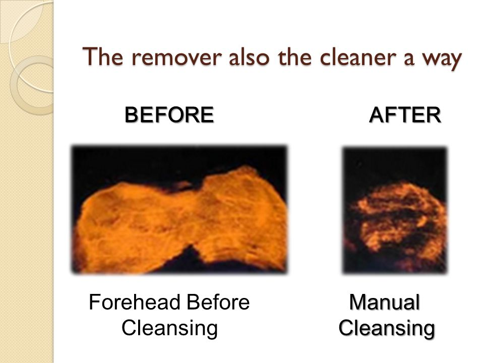 BEFOREAFTER Forehead Before CleansingManualCleansing The remover also the cleaner a way