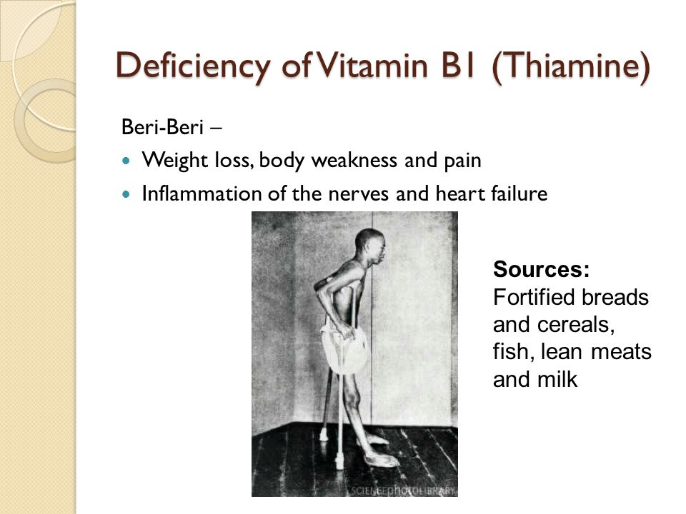 Deficiency of Vitamin B1 (Thiamine) Beri-Beri – Weight loss, body weakness and pain Inflammation of the nerves and heart failure Sources: Fortified breads and cereals, fish, lean meats and milk