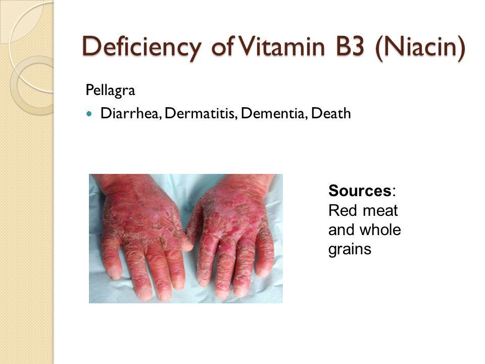 Deficiency of Vitamin B3 (Niacin) Pellagra Diarrhea, Dermatitis, Dementia, Death Sources: Red meat and whole grains