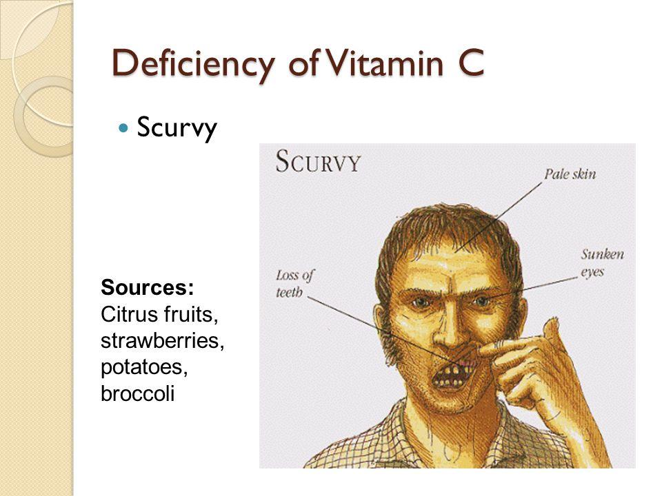 Deficiency of Vitamin C Scurvy Sources: Citrus fruits, strawberries, potatoes, broccoli